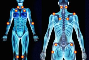 cure-fibromyalgia-tender-points
